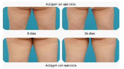 Resultados de ActiGym con ejercicio