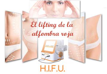 Ver HIFUs